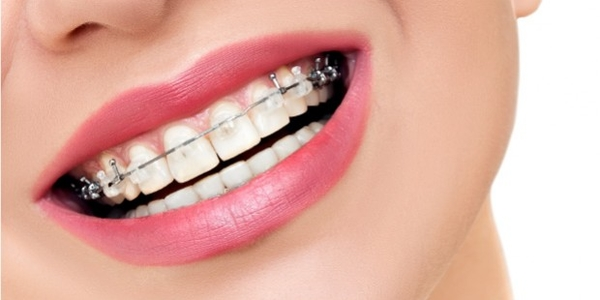 Aparelho Ortodôntico - Ortodontia
