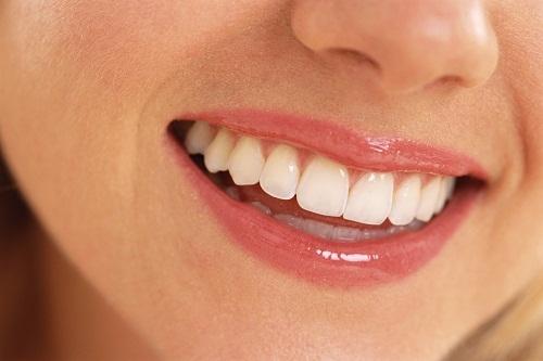Restauração de Dentes - Dentística